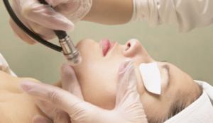 tratamentos a laser